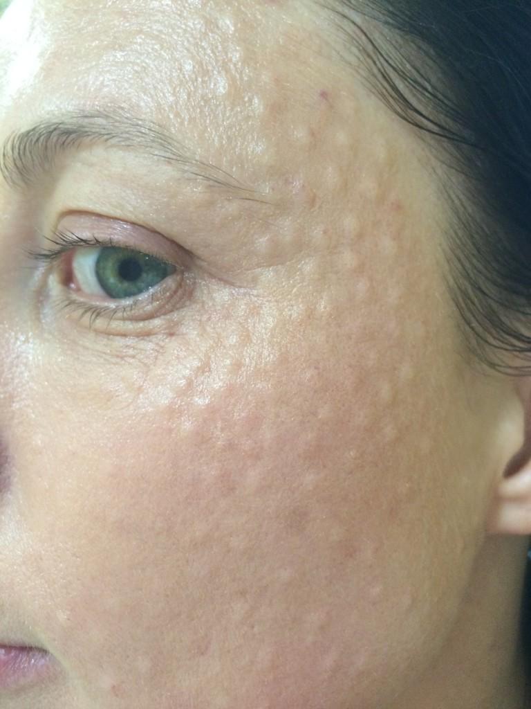 фото после процедуры биоревитализация